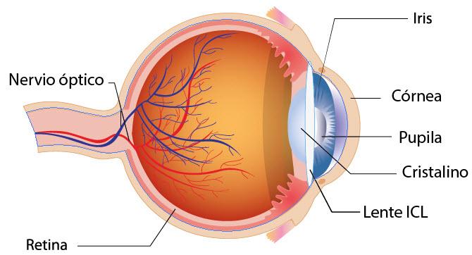lente intraocular miopia magna