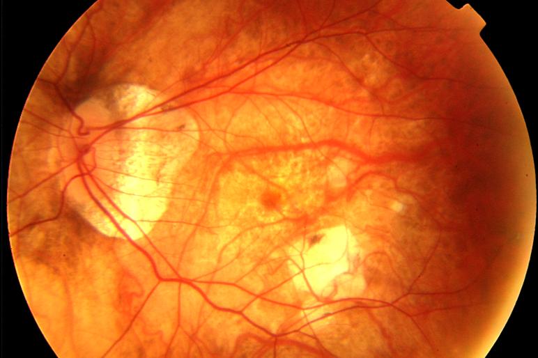 miopia degenerativa tratamiento