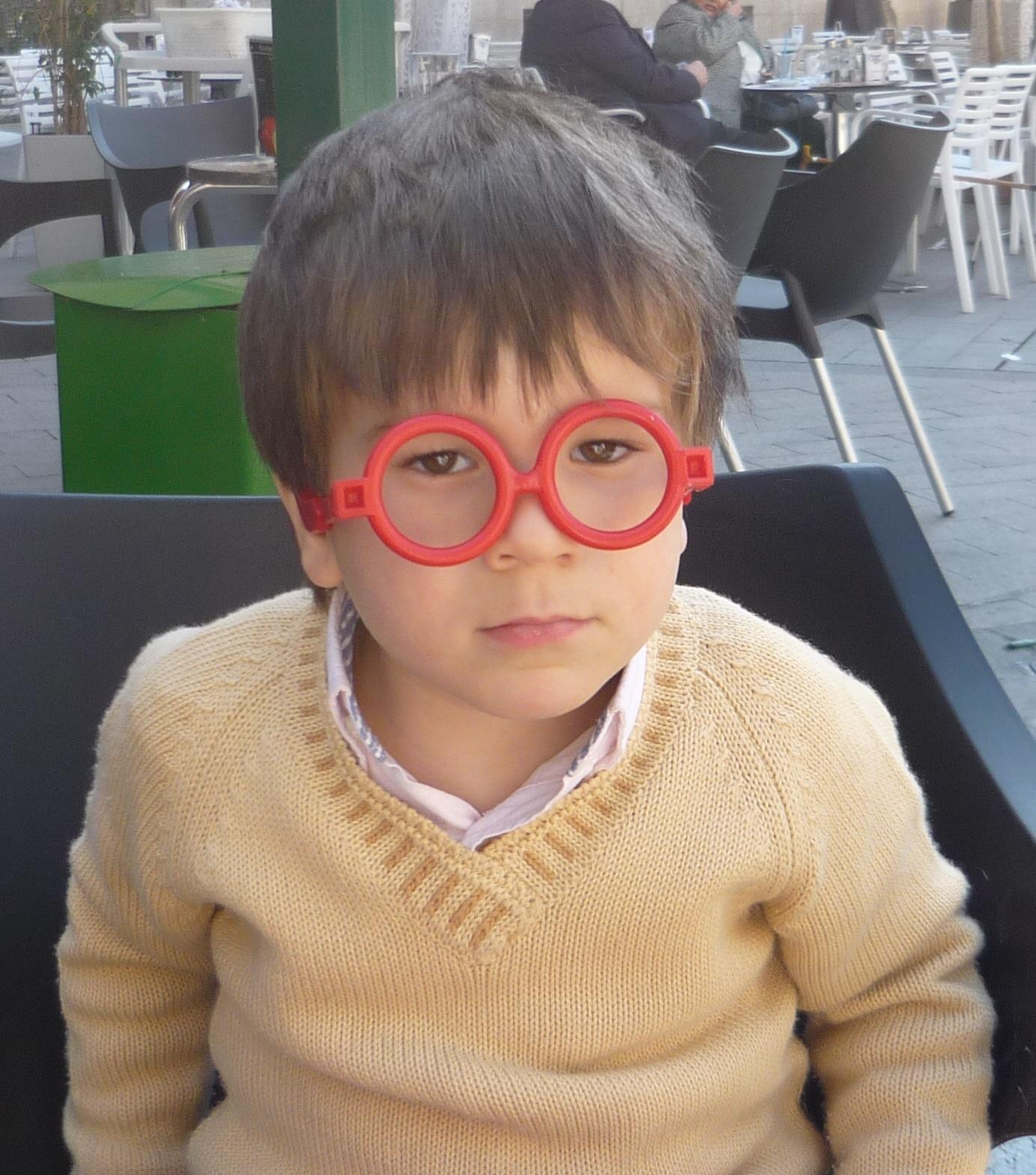 dioptrias miopia y astigmatismo
