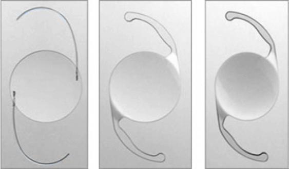 lente intraocular miopia mexico