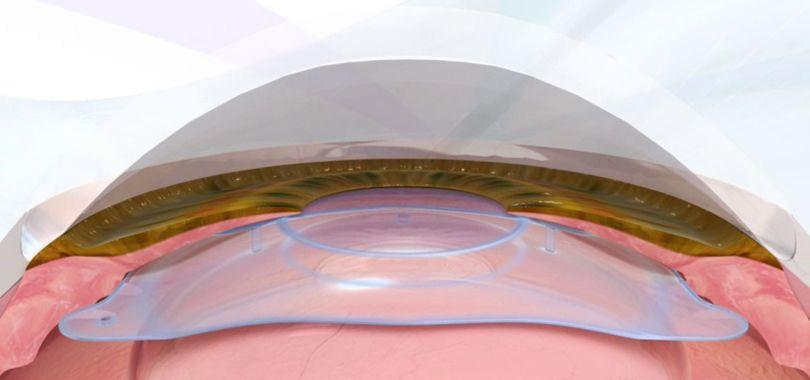 lente intraocular miopia y astigmatismo