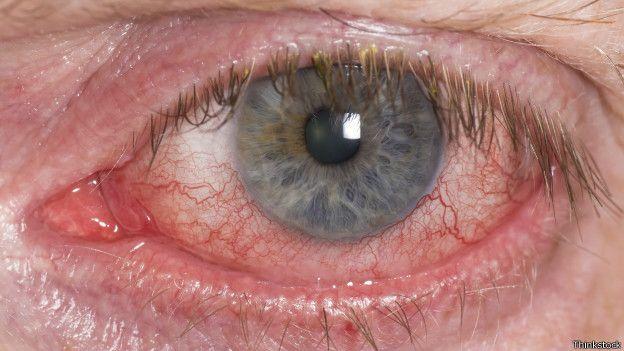 miopia lentillas correctoras