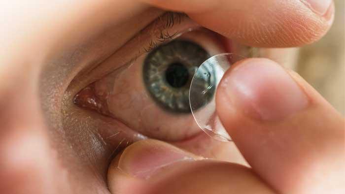 miopia lentillas o gafas