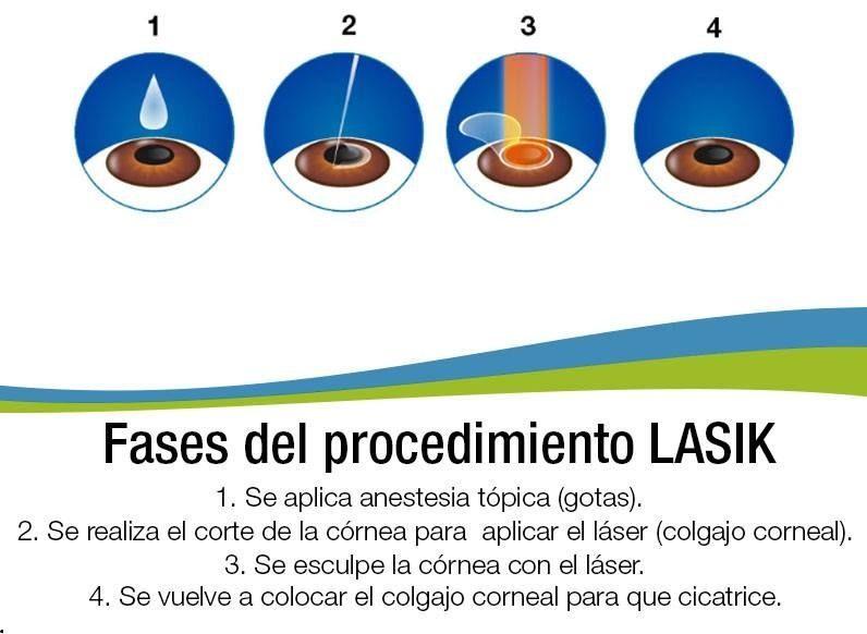 cirugia miopia e astigmatismo