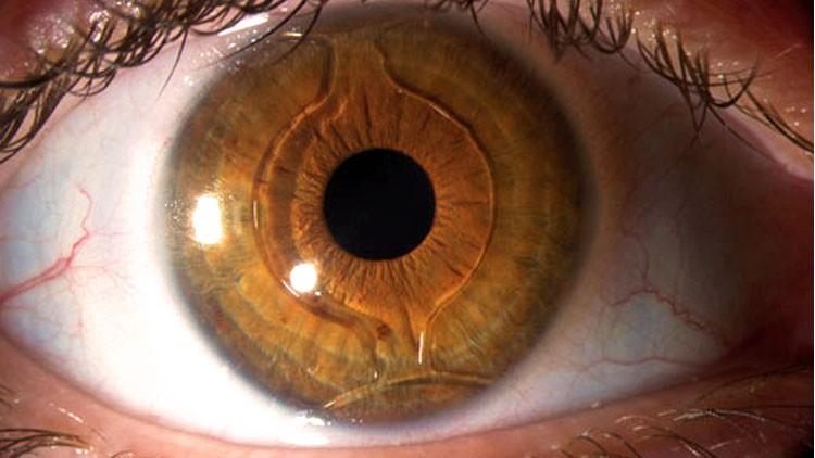 cirugia de miopia precio