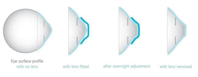 miopia hipermetropia y astigmatismo