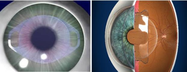 miopia y hipermetropia a la vez