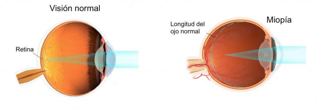 myopia and
