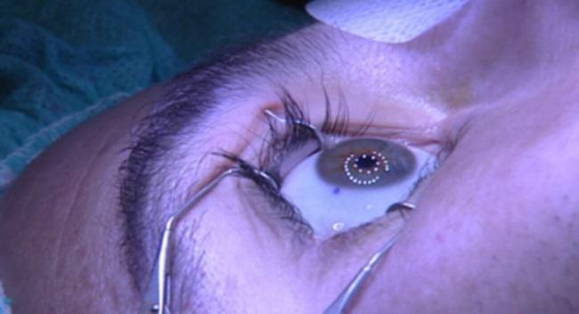 miopia cirugia refractiva