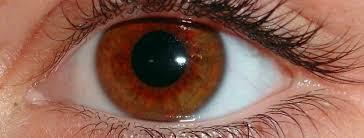 miopia degenerativa cie 10