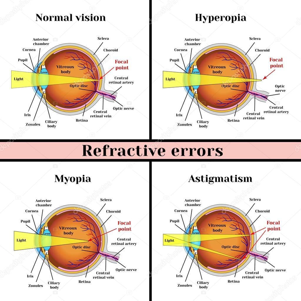 miopia y hipermetropia diferencias