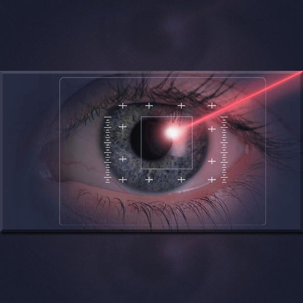 regresión miopia despues de operarse
